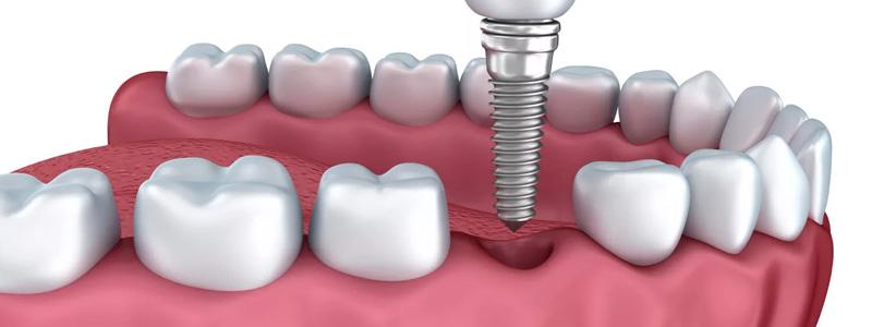 Implant zęba stomatologia